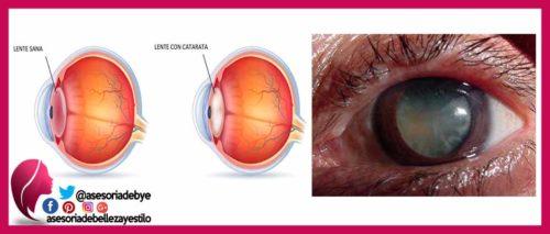 Catarata enfermedades del ojo