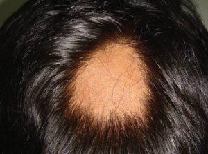 cura de la alopecia areata para siempre