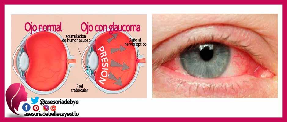 Glaucoma enfermedad del ojo