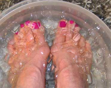 Agua con hielo en los pies para la migraña