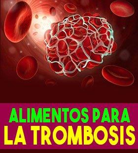 alimentos para la trombosis y alimentos que no se debe comer con trombosis
