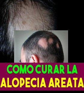 cura definitiva para la alopecia areata